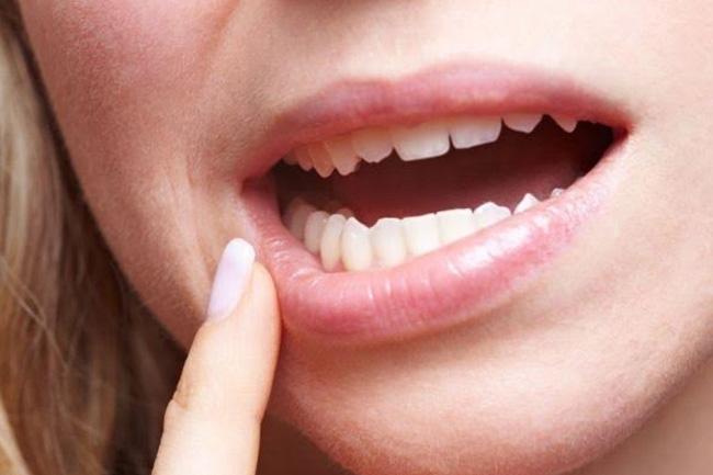 Sângerările gingivale și inflamația gingiei anunță grava boală care afectează 90% dintre români, într-o formă sau alta