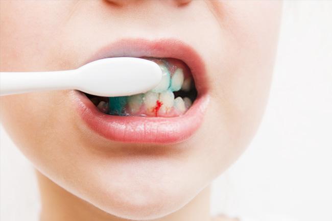 Îți sângerează gingiile la fiecare spălat pe dinți?