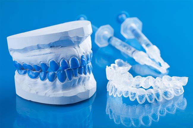 Bicarbonat de sodiu sau albire dentară în cabinetul stomatologului?