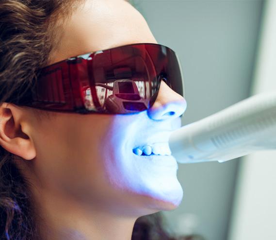 albire a dinților: în gutiere sau cu lampă de albit