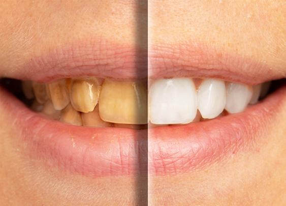 Fumatul, obiceiul nesănătos care păteaza dinții