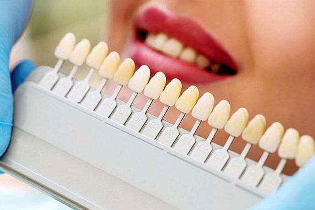 Albirea dinților: bicarbonatul bunicii sau albire profesionistă?